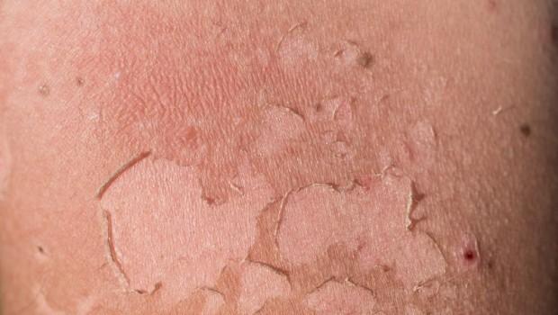 Surprising Natural Sunburn Remedies