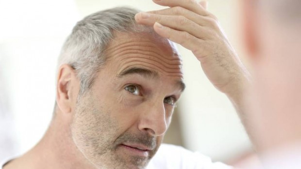 20 Simple Home Remedies to Control Hair Loss