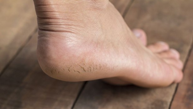 7 Methods for Healing Cracked Heels When You Have Soft Feet
