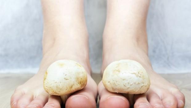 10 Easy to Follow Natural Remedies for Killing Nail Fungus