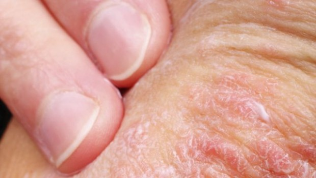 Learn How to Treat Psoriasis with Essential Oils