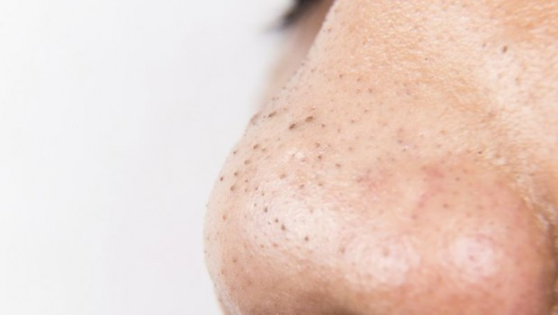 Easy Natural Remedies for Removing Blackheads