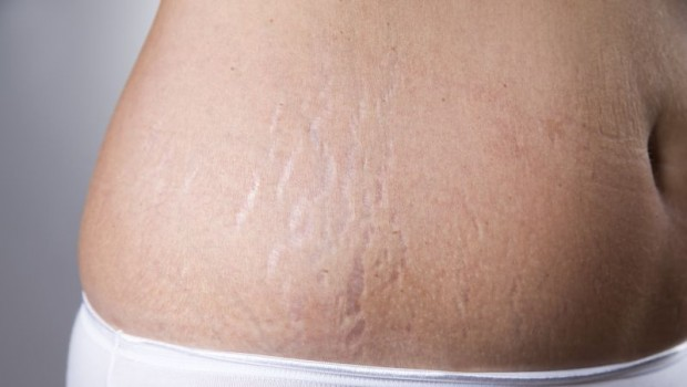 The 15 Best Solutions for Getting Rid of Stretch Marks