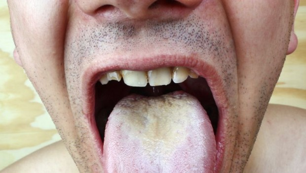 10 Simple Home Remedies for Dealing with a White Coated Tongue