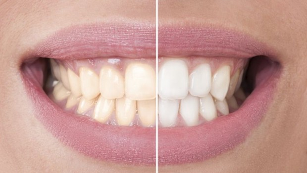 6 Quick and Easy Home Remedies to Whiten Your Teeth
