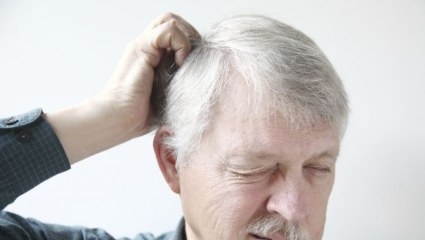 10 Amazing Natural Remedies for a Dry, Itchy Scalp